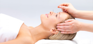 Cosmetic-Acupuncture